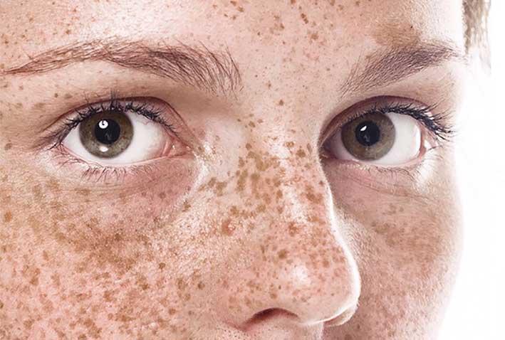 Penyebab flek hitam di wajah