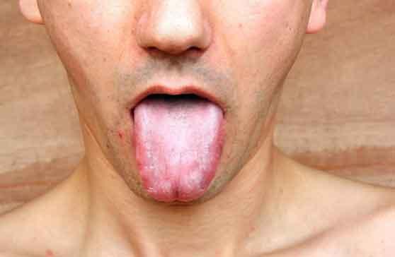 cara mengatasi mulut kering