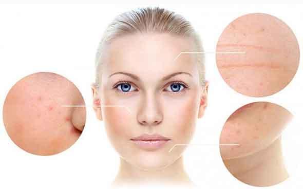 cara menjaga kesehatan kulit