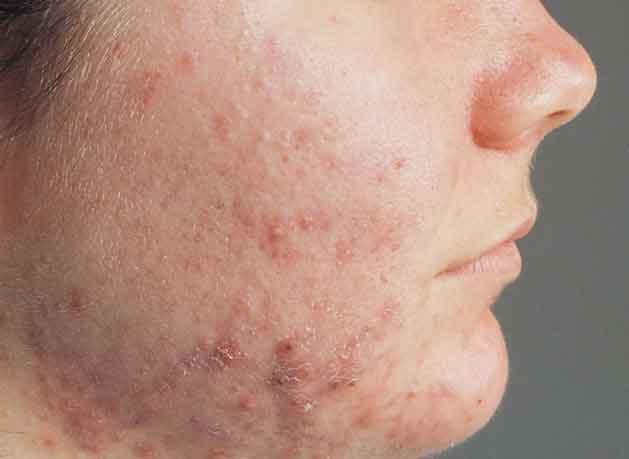Cara mencegah jerawat di wajah