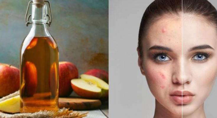 manfaat cuka apel untuk wajah dan cara menggunakannya