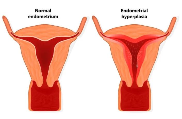 penyebab penebalan dinding rahim