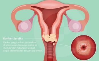 ciri – ciri kanker serviks1