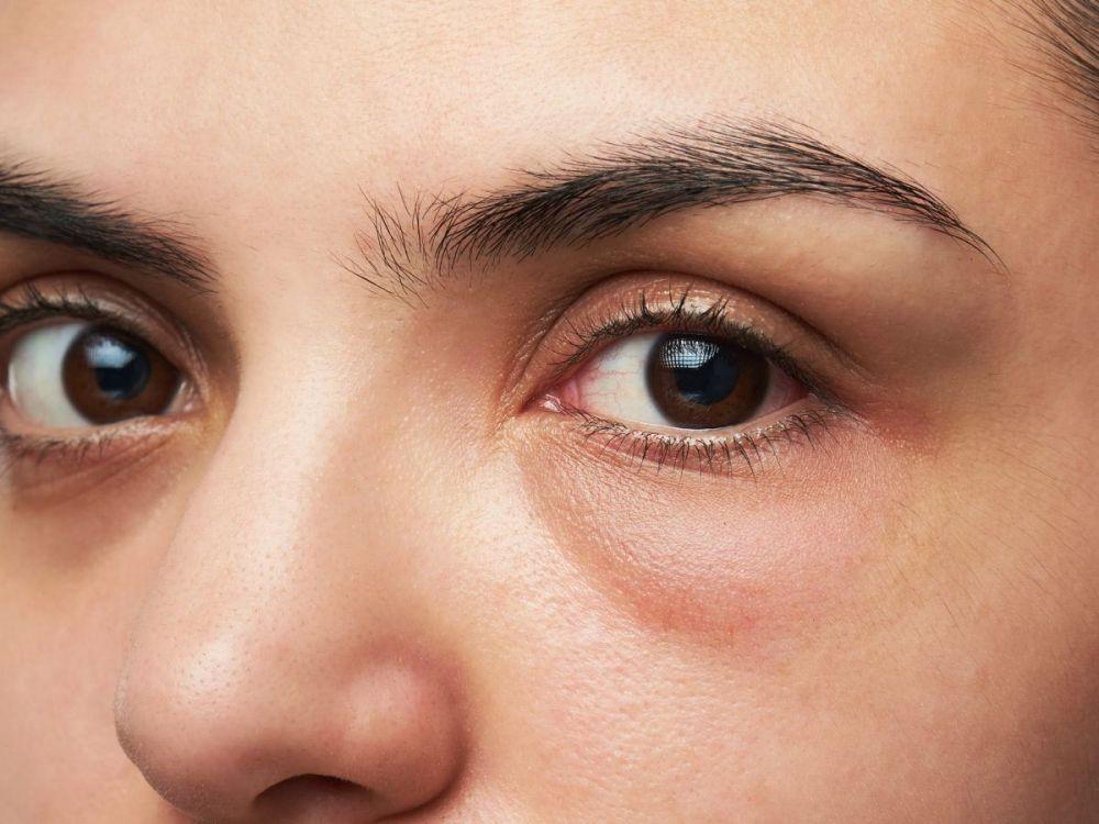 cara menghilangkan mata bengkak akibat menangis