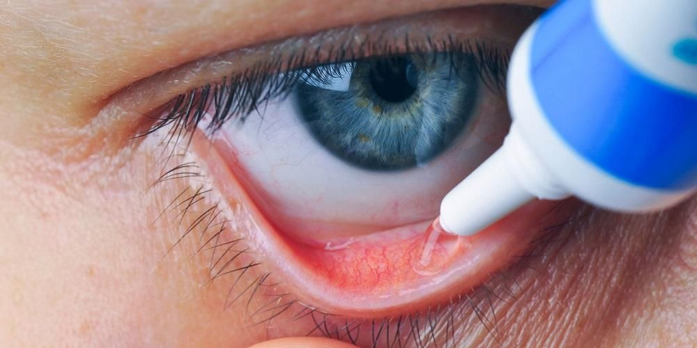 Cara menggunakan salep mata