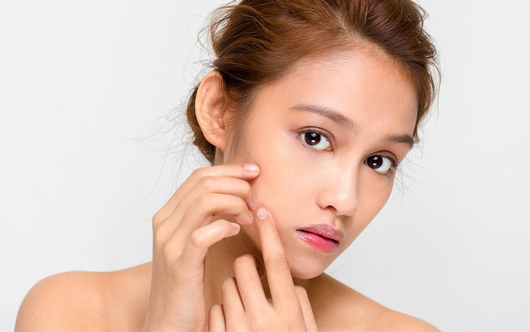 review cara menghilangkan bruntusan di wajah dalam semalam