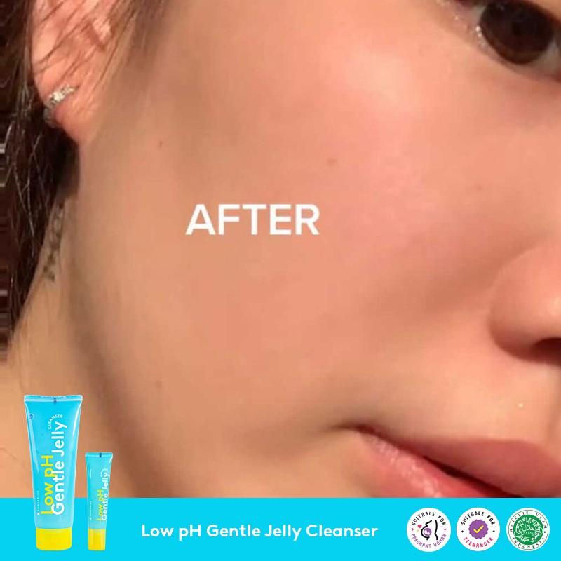 Facial Wash Somethinc untuk Kulit Berjerawat